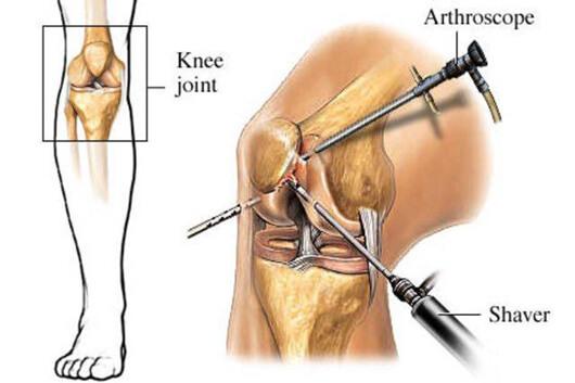 - چرا افراد نیازمند درمان با آرتروسکوپی هستند؟