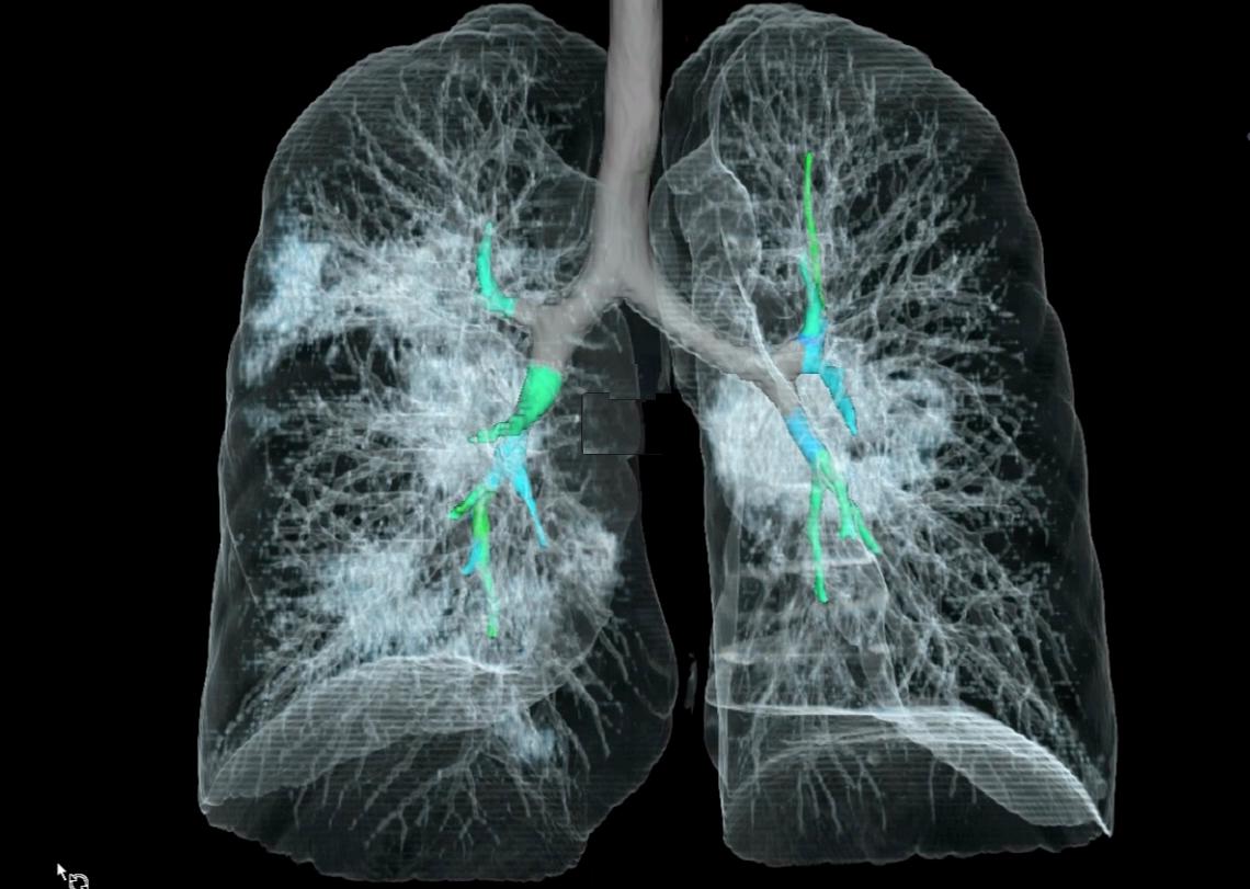 گرفتن عکس رادیولوژی در منزل