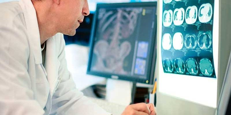 نکاتی برای پس از گرفتن عکس رادیولوژی در منزل