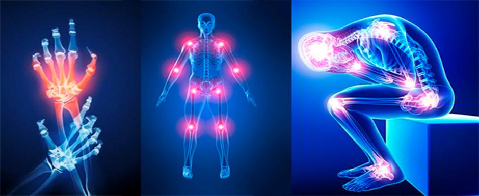 - انجام توانبخشی عضلات زانو: