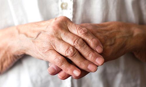 - متخصصین روماتولوژی برای درمان بیماران درمنزل چه داروهایی تجویز می نمایند ؟