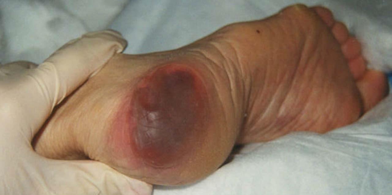 علت های ایجاد زخم بستر را می دانید؟