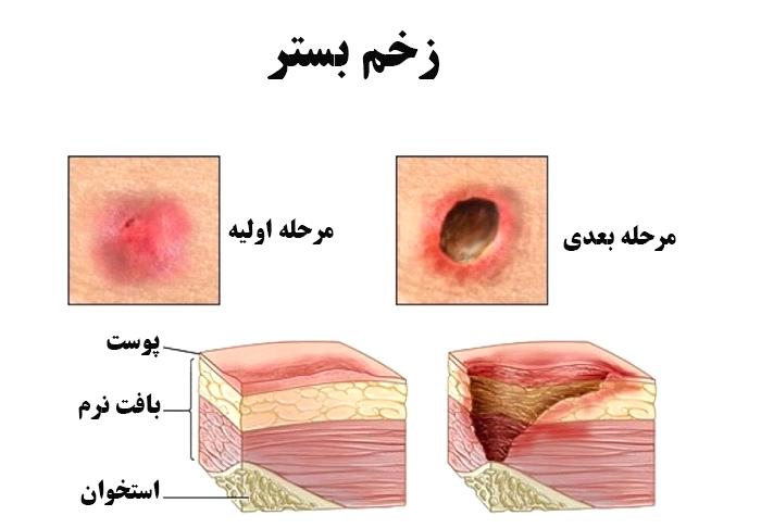 مراحل پیدایش زخم بستر چگونه است؟