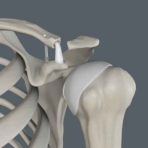 - جراحی آرتروپلاستی به چه صورت می باشد؟