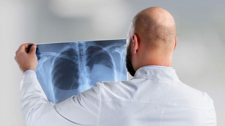 چرا گاهی باید از خدمات رادیولوژی در منزل استفاده کنیم؟