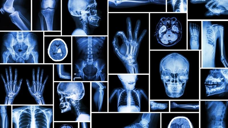 تعرفه رادیولوژی در منزل