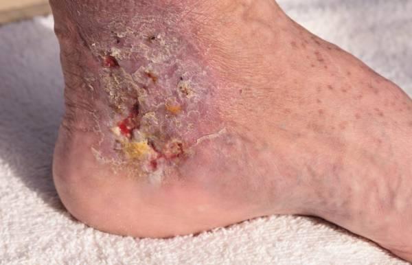 آیا با مرحله های ایجاد زخم آشنایی دارید؟