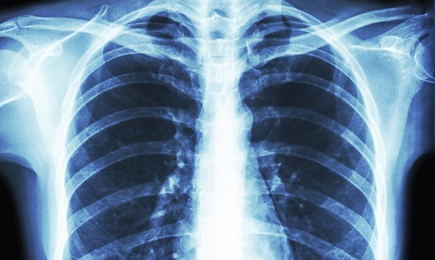 - به چه علت هایی حضور متخصص رادیولوژی در منزل ضروری می باشد و چه مزیت هایی دارد؟