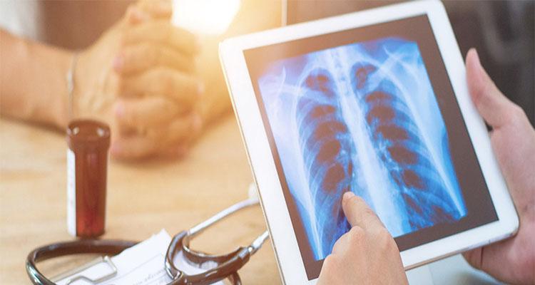 بیمارستان ها و دریافت عکس رادیولوژی چیست؟